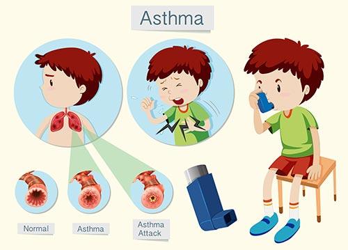 asthma specialist in chennai